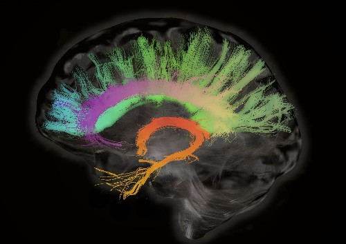 Scans Show Female Brains Remain Youthful As Male Brains Wind Down