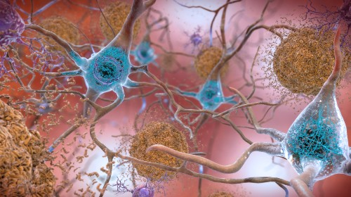 New Markers For Alzheimer's Disease Could Aid Diagnosis And Speed Up Drug Development