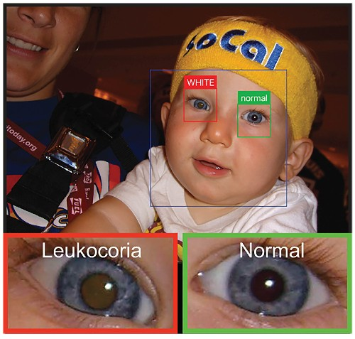 An App That Can Catch Early Signs Of Eye Disease In A Flash