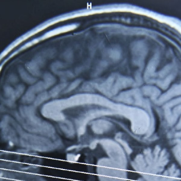 Exercise Could Aid Concussion Recovery