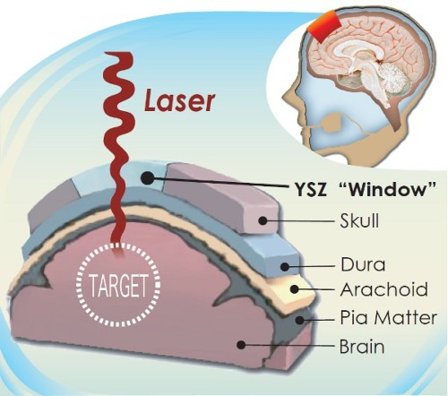 Clear Cranial Implant Lets Doctors See Into The Brain