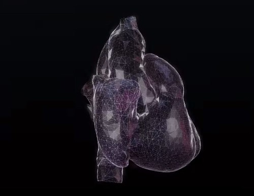 3D Heart Simulation Predicts How Drugs Will Affect Your Heartbeat