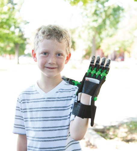 Makers Print Out Durable, Custom Prosthetic Hands For Needy Kids