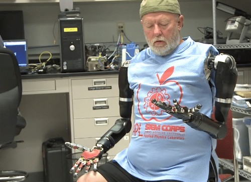 World First: Man Controls Two Prosthetic Arms With His Mind