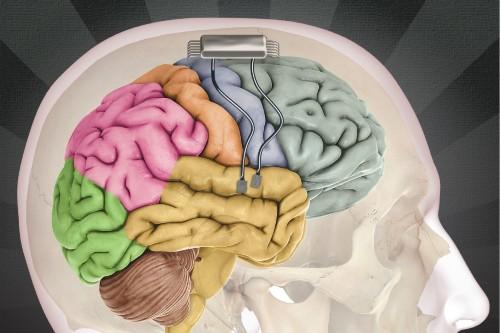 Scientists 'Eavesdrop' On A Brain