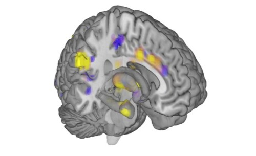 Brain Scans Offer Precise Measurement Of Human Pain