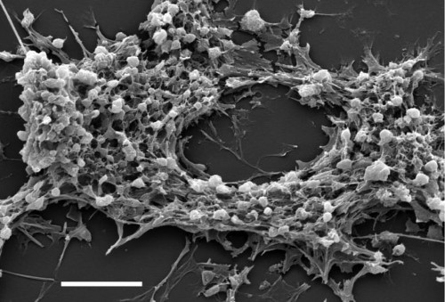 Drugs Disguised As Blood Cells Could Kill Cancer