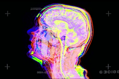 Watching Your Brain Freak Out On A Scanner Calms You Down
