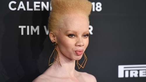 South African lawyer is first albino model on Vogue cover: 'The way I look is enough'