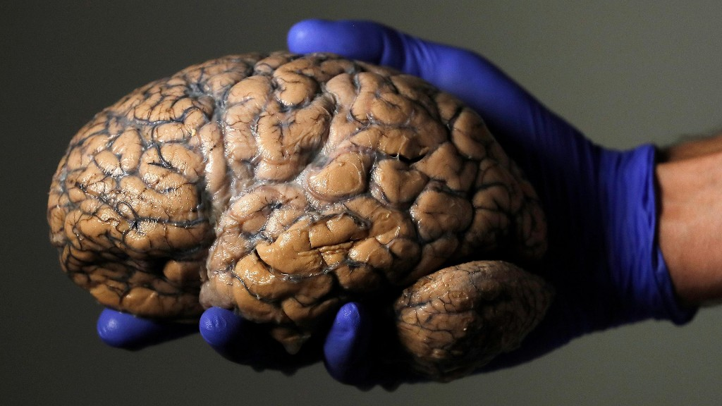 Traumatic Brain Injury  ( TBI ) and Concussions - cover