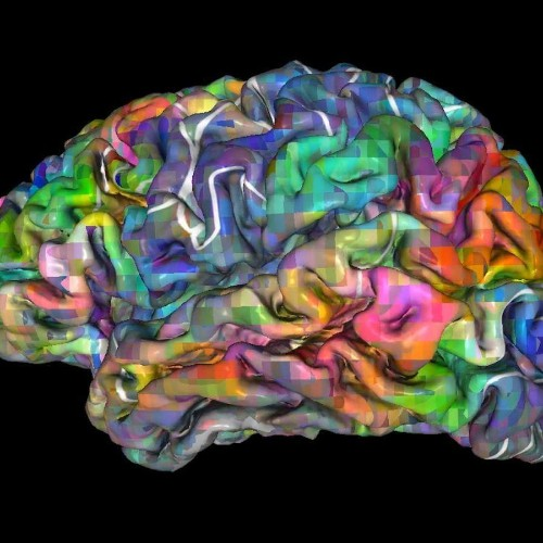 Neuroscientists read unconscious brain activity to predict decisions