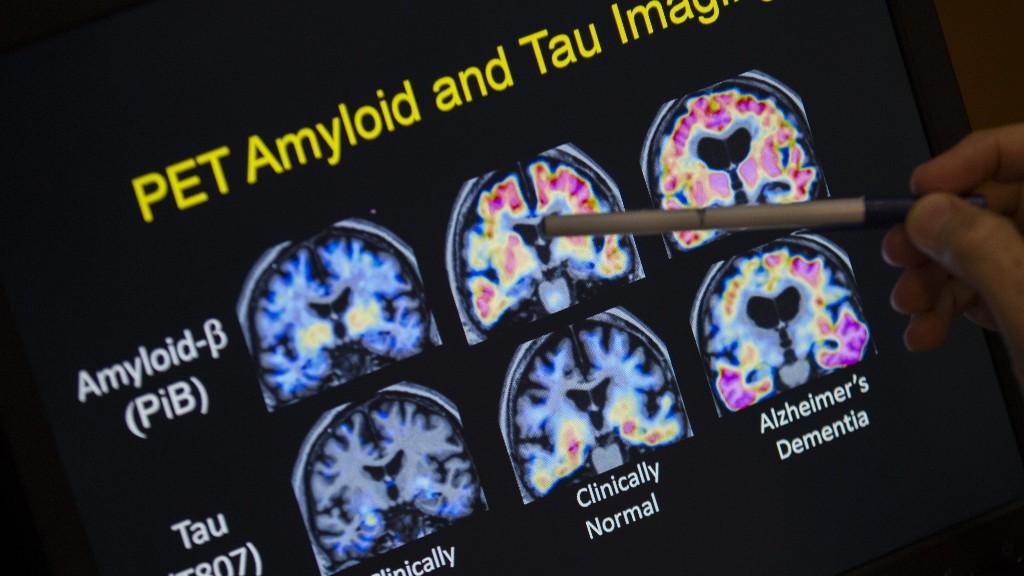 Brain Diseases  - cover