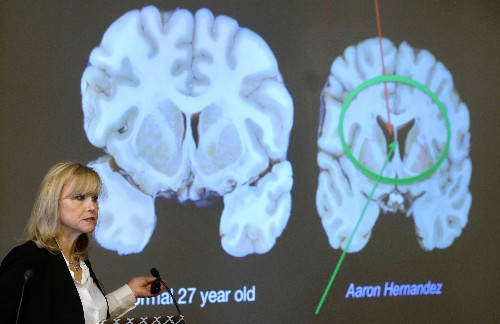 The brain of Aaron Hernandez is why no one should play football. Ever