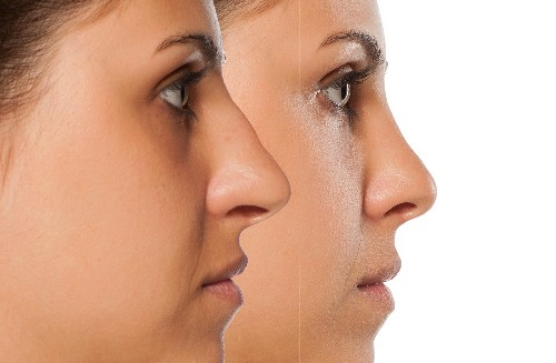 Why good ethnic rhinoplasty is so hard to find