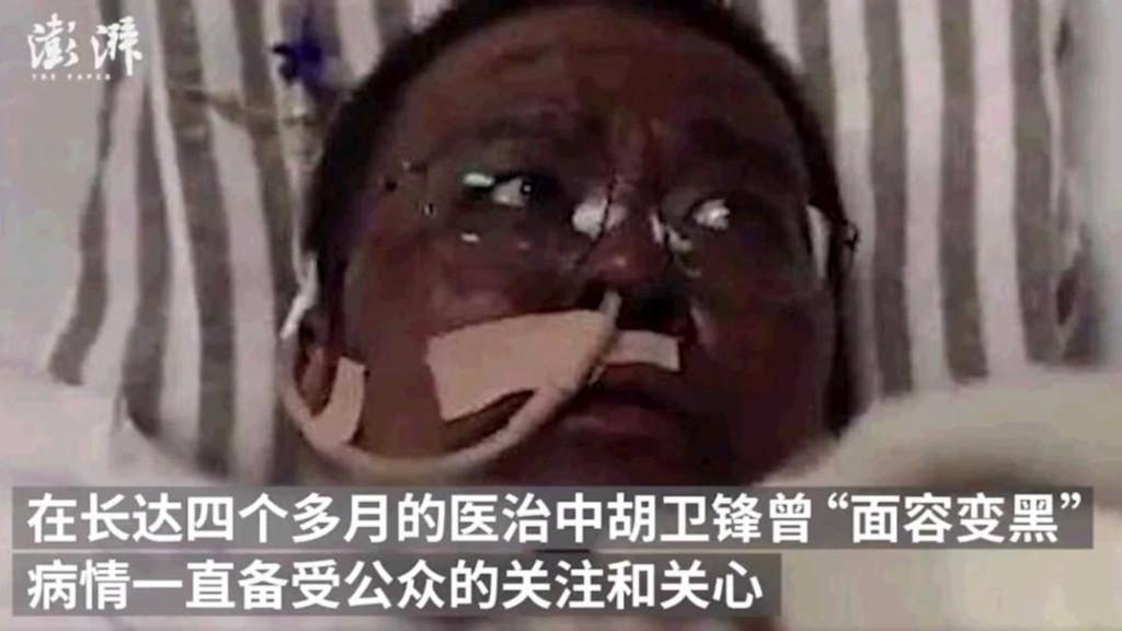 Coronavirus: le docteur Hu Weifeng, collègue du lanceur d'alerte de Wuhan, est mort