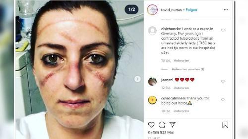 Kampf gegen das Virus: Erschöpfte Ärzte und Pflegekräfte zeigen ihre Gesichter