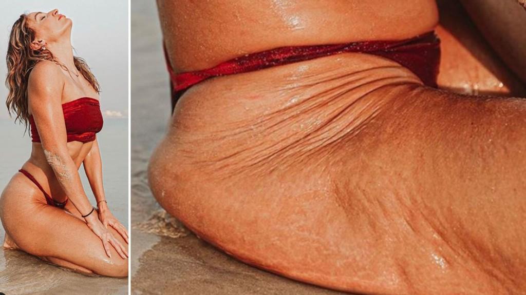 Instagram vs. Reality: Diese Frau zeigt, was Licht und die richtigen Posen ausmachen