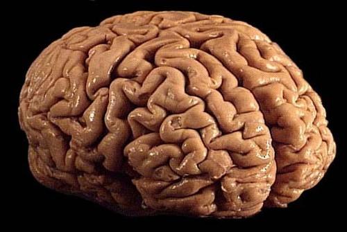 Monclarity 筹资 500 万美金,发布大脑训练应用 Brainwell