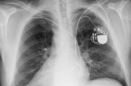 Homeland Security warns of critical flaws in Medtronic defibrillators