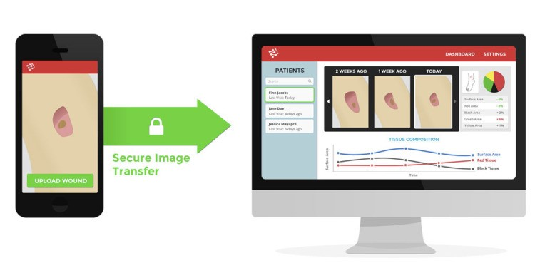 Tencent Leads $750K Investment In Wound-Care Startup, Tissue Analytics