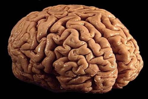 Monclarity Raises $5M And Launches Its Brain-Training App Brainwell