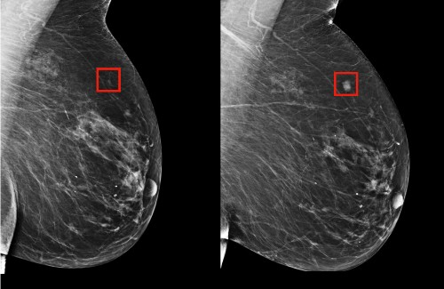 MIT AI tool can predict breast cancer up to 5 years early, works equally well for white and black patients