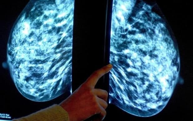 'Holy grail' of preventing breast cancer is in sight, say scientists