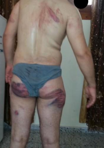 Hamas 'tortured Palestinian collaborators' in Gaza hospital