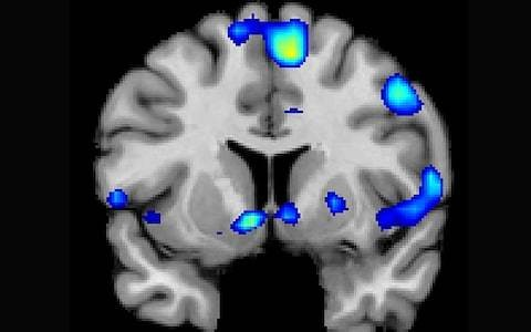 What your brain looks like on God: spiritual experience triggers same areas as sex and gambling