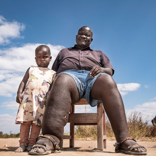 How Malawi is turning the tide against the crippling elephantiasis parasite