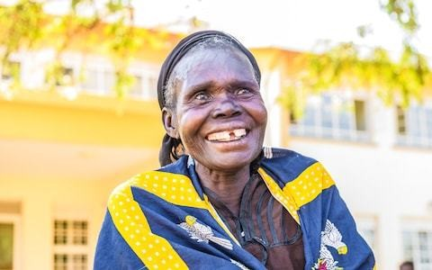 Innovative project returns sight to thousands with cataracts in East Africa