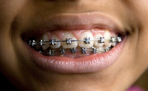 'No proof' dental braces work, German government report finds
