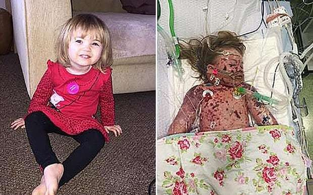 Parents release heartbreaking image of girl, two, dying of meningitis as 400,000 sign vaccine petition