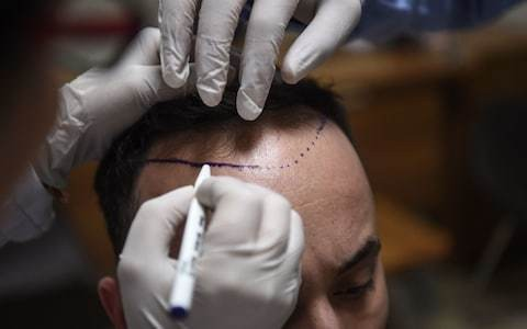 Finding a cure for baldness is proving tricky - but are these innovations the future?