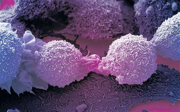 Keep cancer alive to stop it spreading, say scientists