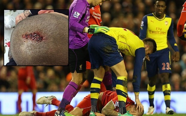 Martin Skrtel posts picture of his stapled head
