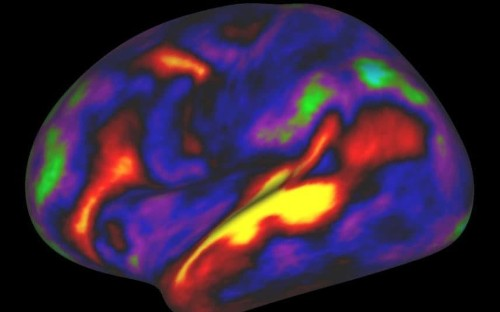Generosity down to brain's wiring, new research suggests