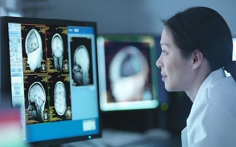 Brain implants could allow companies and politicians to access thoughts and mood, Royal Society warns