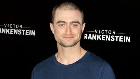 Daniel Radcliffe opens up about his post-Harry Potter drinking problem and that Trainwreck cameo