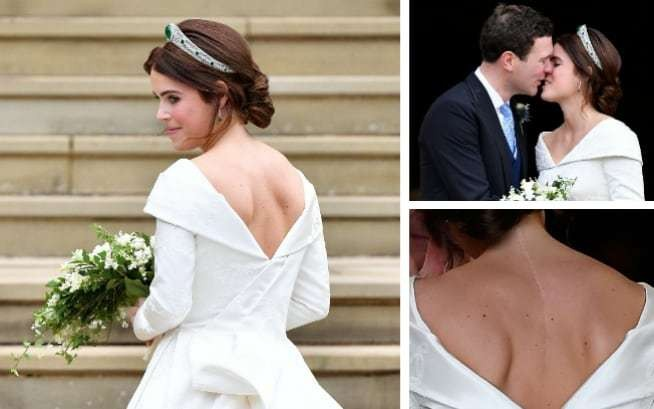 Princess Eugenie on how she came to be 'very proud' of her scoliosis scar