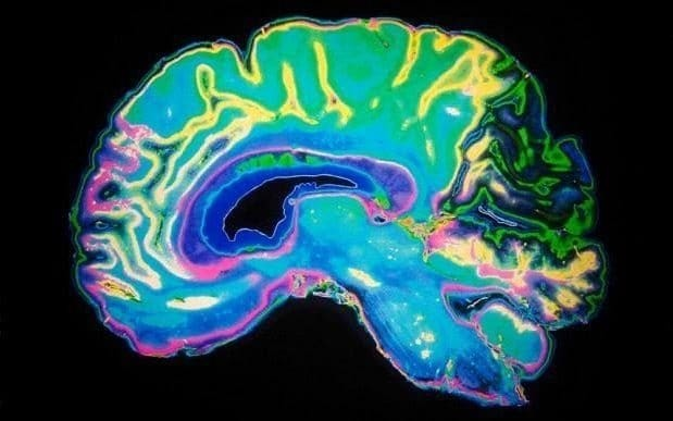 Healthy lifestyle reduces build-up of sticky brain plaques which lead to Alzheimer's, scientists show