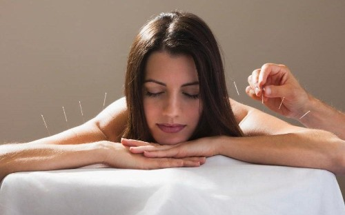 Acupuncture may stop memory loss that precedes dementia
