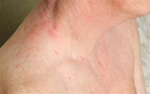 Shingles increase risk of stroke and heart attack