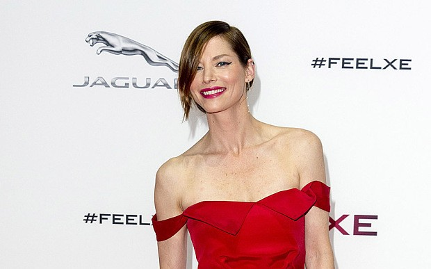 Sienna Guillory's sex scenes leaves her with hives