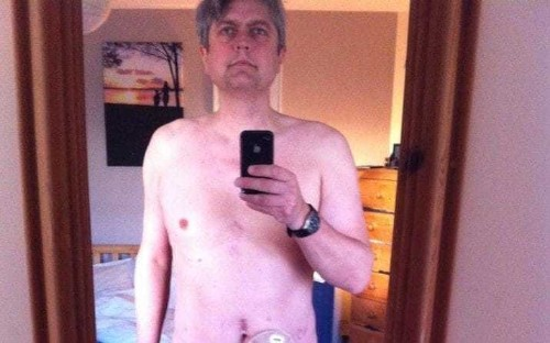 Prostate cancer victim shares stark image as warning to other men