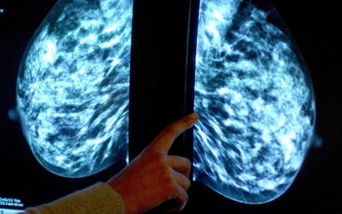 New treatment offers up to ten months extra life for women with deadly breast cancer