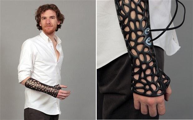 3D printed cast could heal bones 40 per cent faster