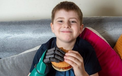 British boy aged 8 becomes world's youngest to be fitted with bionic arm as he celebrated eating with both hands for first time