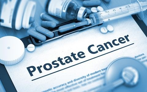 Prostate cancer now the most commonly diagnosed form thanks to 'Turnbull and Fry' effect