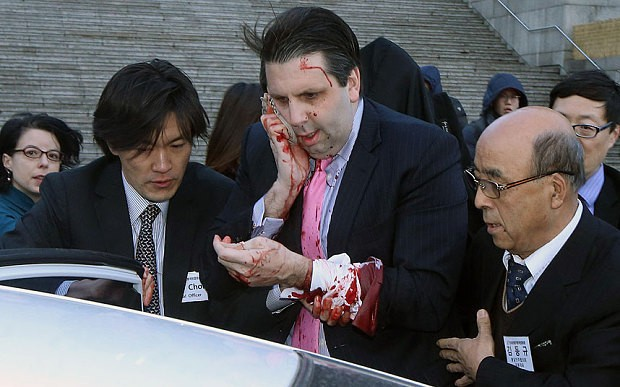South Korea charges attacker of US envoy Mark Lippert with attempted murder